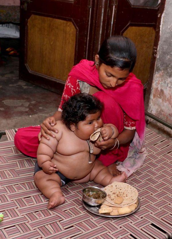 Cuộc sống hiện tại của bé gái Ấn Độ 8 tháng tuổi nặng 17kg - Ảnh 3