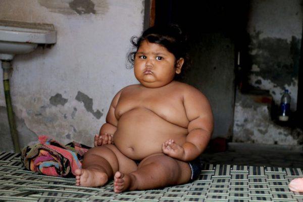 Cuộc sống hiện tại của bé gái Ấn Độ 8 tháng tuổi nặng 17kg - Ảnh 6