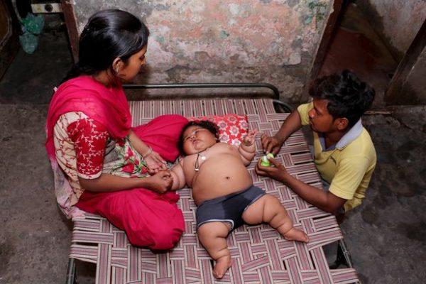 Cuộc sống hiện tại của bé gái Ấn Độ 8 tháng tuổi nặng 17kg - Ảnh 4