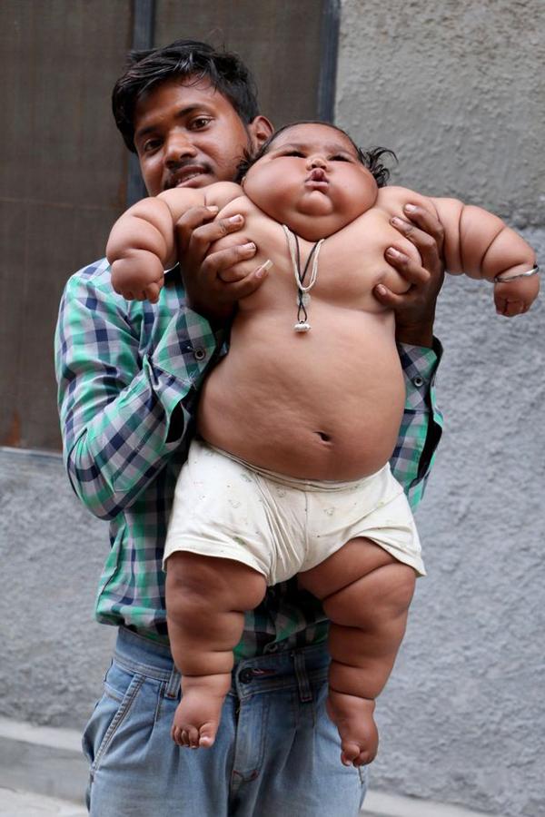 Cuộc sống hiện tại của bé gái Ấn Độ 8 tháng tuổi nặng 17kg - Ảnh 1