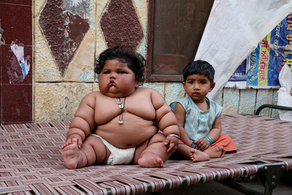 Cuộc sống hiện tại của bé gái Ấn Độ 8 tháng tuổi nặng 17kg - Ảnh 2