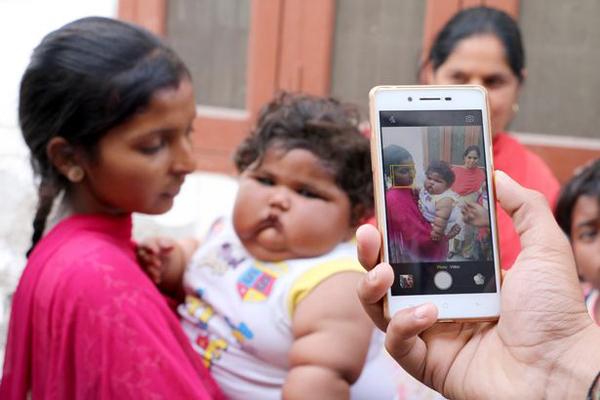 Cuộc sống hiện tại của bé gái Ấn Độ 8 tháng tuổi nặng 17kg - Ảnh 5