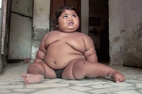 Cuộc sống hiện tại của bé gái Ấn Độ 8 tháng tuổi nặng 17kg - Ảnh 7