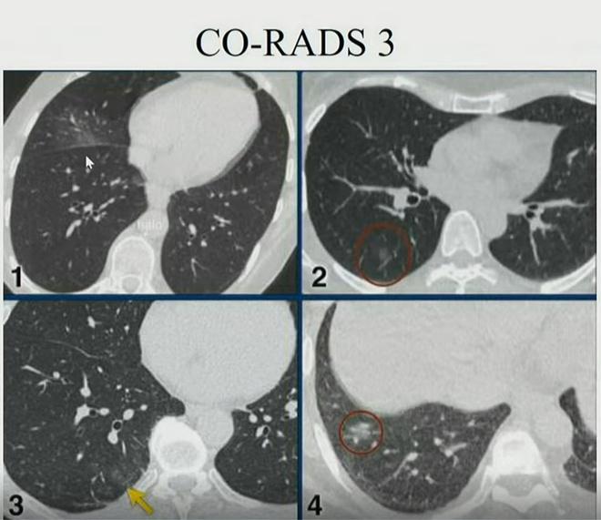 Hình ảnh phổi người mắc Covid-19 ở Việt Nam - Ảnh 3