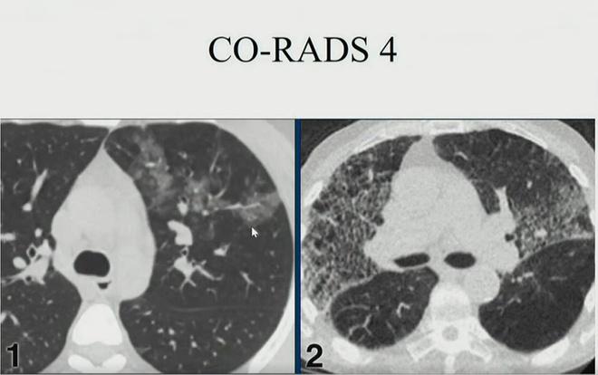 Hình ảnh phổi người mắc Covid-19 ở Việt Nam - Ảnh 4